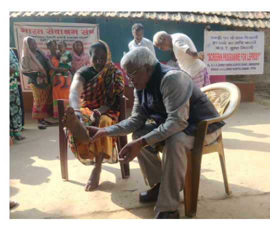 IMPROVING  COMMUNITY ACCESS TO LEPROSY  SPECIALZED  LEPROSY HEALTH CARE